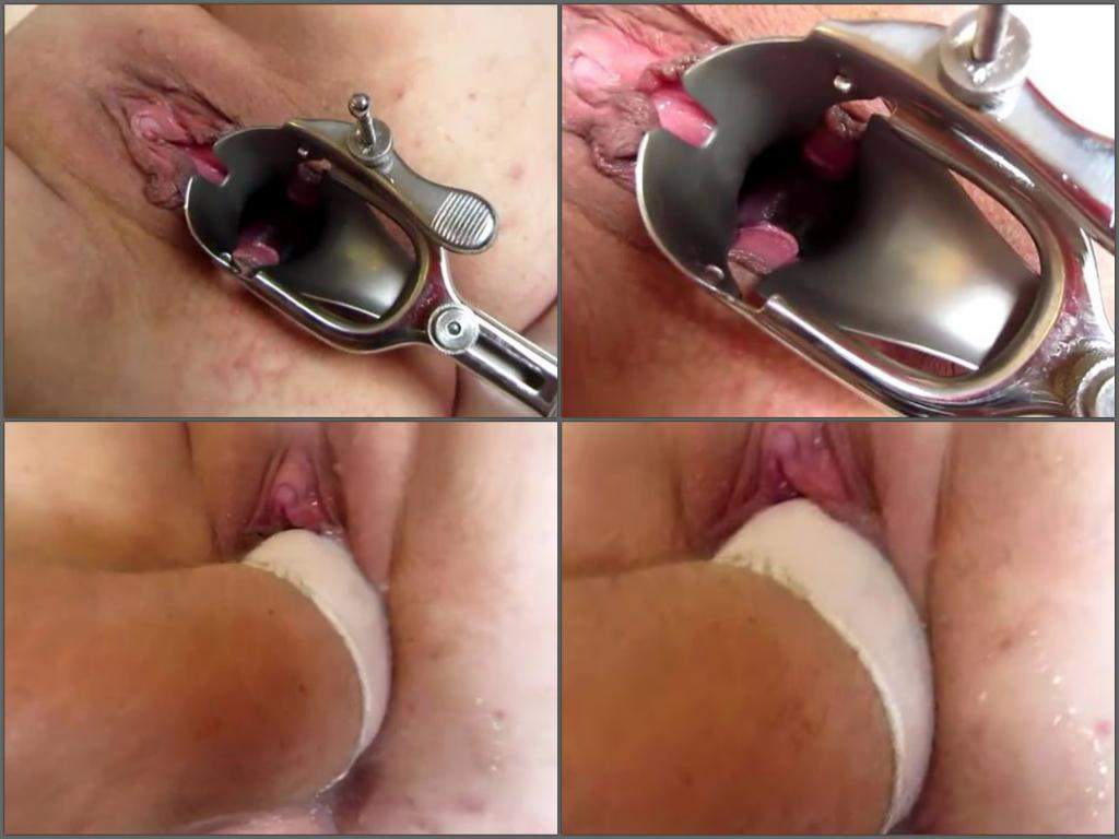 Bbw Vaginal Speculum And Awesome Fisting Homemade -2708