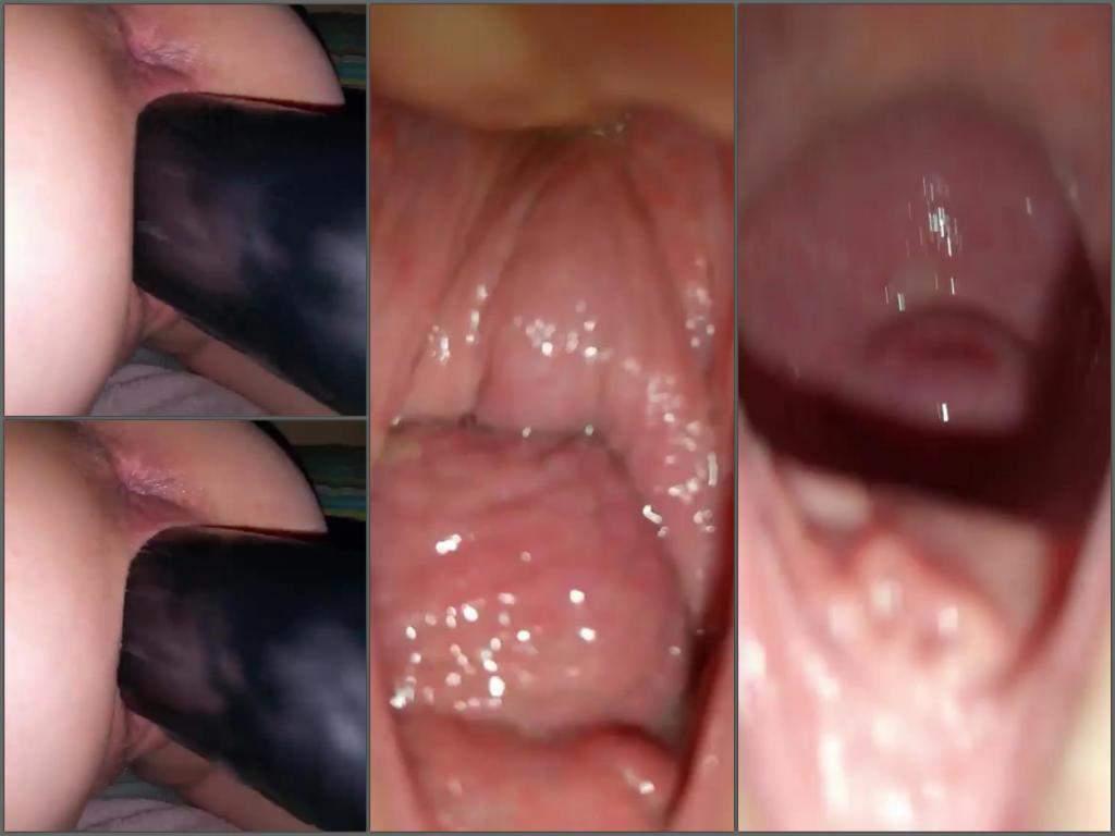 Huge gaping vagina