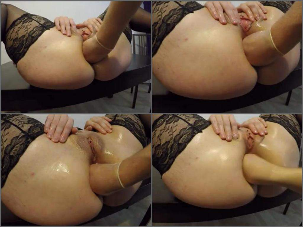 Fisting mature big ass