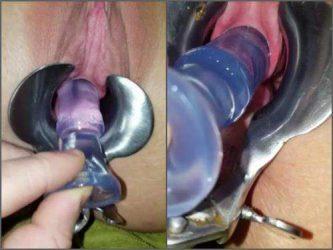 speculum examination.amateur speculum examination,homemade speculum examination,pussy stretching,dildo in peehole,urethra stretching,peehole fuck