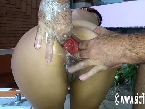 extreme deep fisting,anal fisting,bottle in ass,anal prolapse porn,huge prolapse stretching,sweet anal prolapse,fisting homemade,extreme fisting video