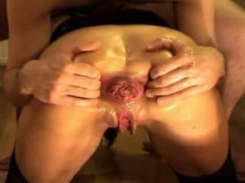 Amateur wife gets fisted and ball in prolapse asshole new 2017