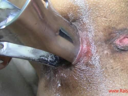 russian milf webcam,webcam mature speculum examination,beer in pussy,speculum porn,anal speculum,homemade speculum examination,stretching anus