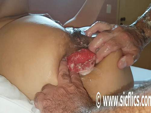 Husband hardcore stretched wifes big anal prolapse after double fisting